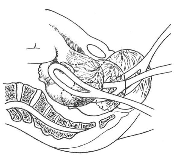 Application du forceps
