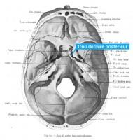 Le trou déchiré postèrieur, une partie de la base du crâne qui lorsqu'elle est en compression peut perturber le système digestif du nouveau né.